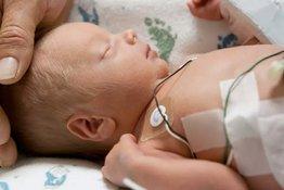 Sự phát triển nhận thức của trẻ sinh non có theo kịp trẻ sinh đủ tháng?
