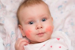 Viêm da cơ địa ở trẻ: Nguyên nhân, triệu chứng và cách điều trị hiệu quả