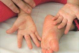 Trẻ em bị tay chân miệng phải làm sao?