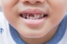 Sâu răng cửa ở trẻ em: nguyên nhân và cách khắc phục hiệu quả