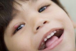 Trẻ bị lên lẹo ở mắt phải làm sao: Cách chăm sóc khi trẻ bị lên lẹo