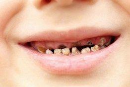 Trẻ bị sún răng sớm, bố mẹ phải làm sao?
