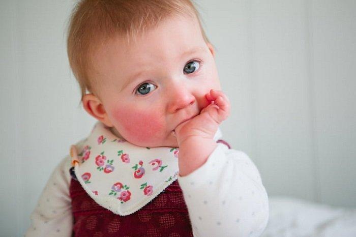 Em bé bị chàm sữa mút tay.