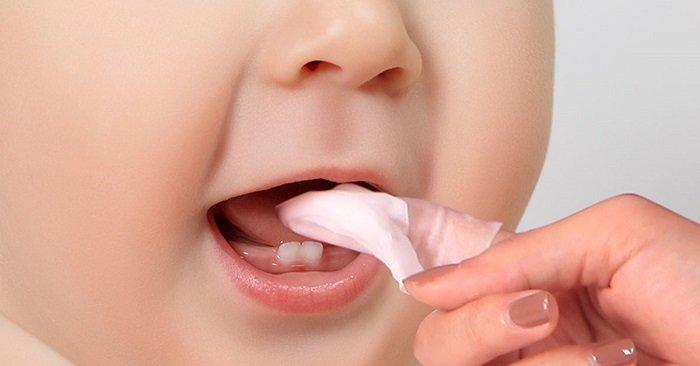 Rơ lưỡi em bé