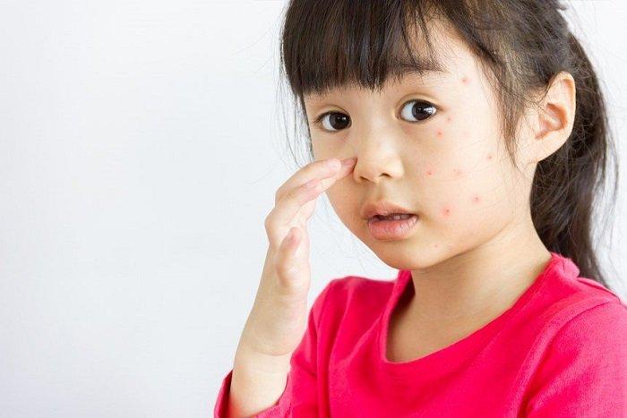 làm gì khi trẻ bị sốt xuất huyết