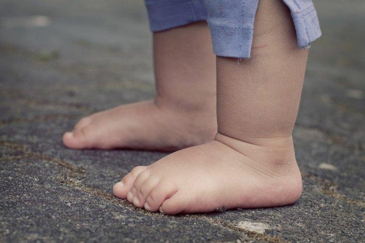 hội chứng bàn chân dẹt ở trẻ