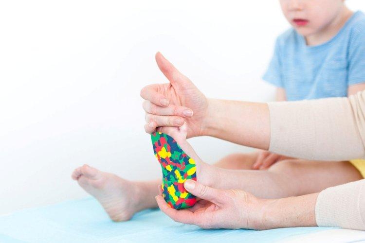 đế giày chỉnh hình dành cho trẻ mắc hội chứng bàn chân bẹt