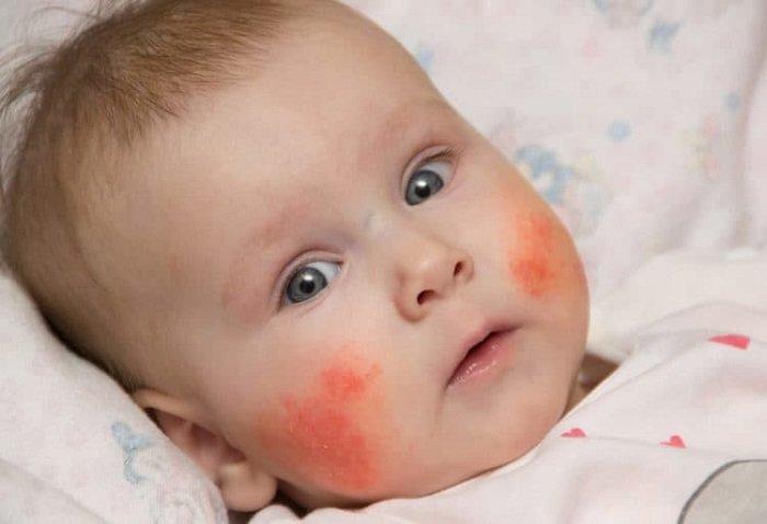 Em bé bị viêm da ở trẻ sơ sinh