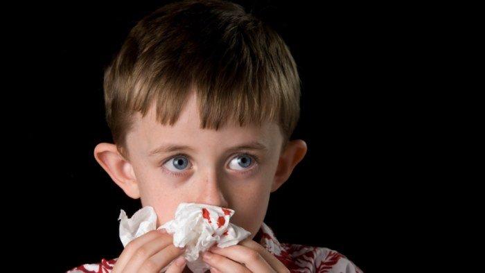 trẻ bị chảy máu cam nên ăn gì