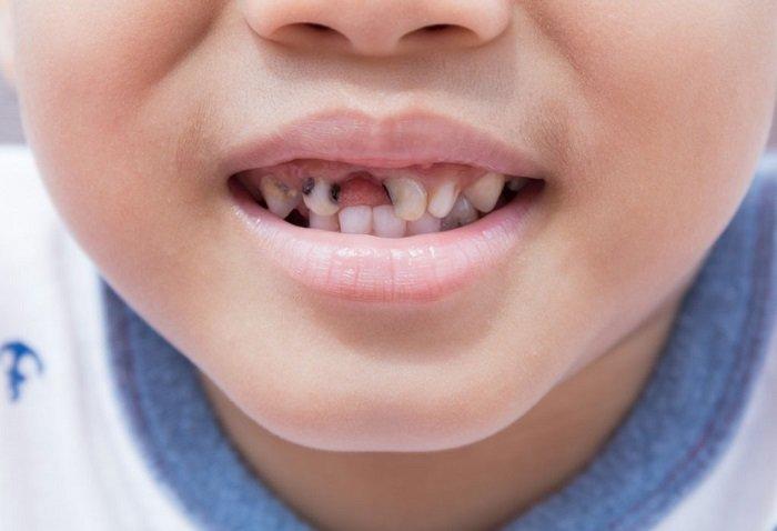 răng bé bị sâu