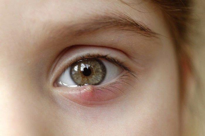 Trẻ bị lên lẹo ở mắt phải làm sao là điều mà nhiều bố mẹ quan tâm.
