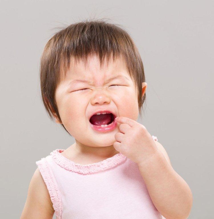 áp xe răng ở trẻ em rất đau đớn