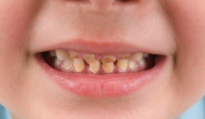 mòn răng ở trẻ em