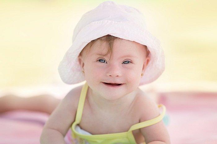 Bệnh Down ở trẻ sơ sinh là bệnh không chữa được.