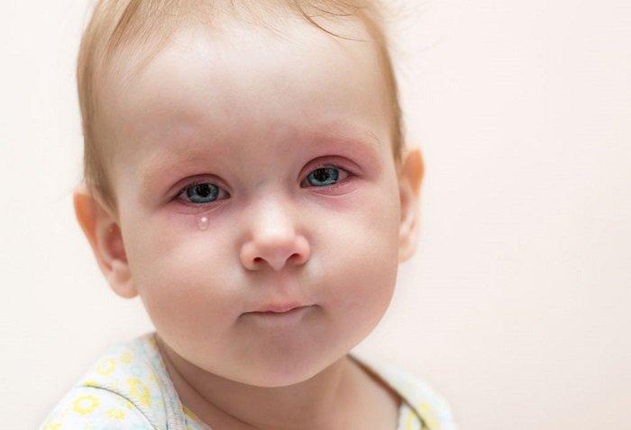 Em bé đau mắt vì sữa mẹ rơi vào mắt.