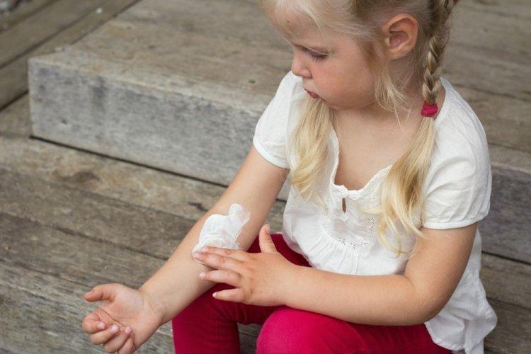 trẻ bị dị ứng thời tiết bao lâu thì khỏi, trẻ bôi kem dưỡng giảm ngứa