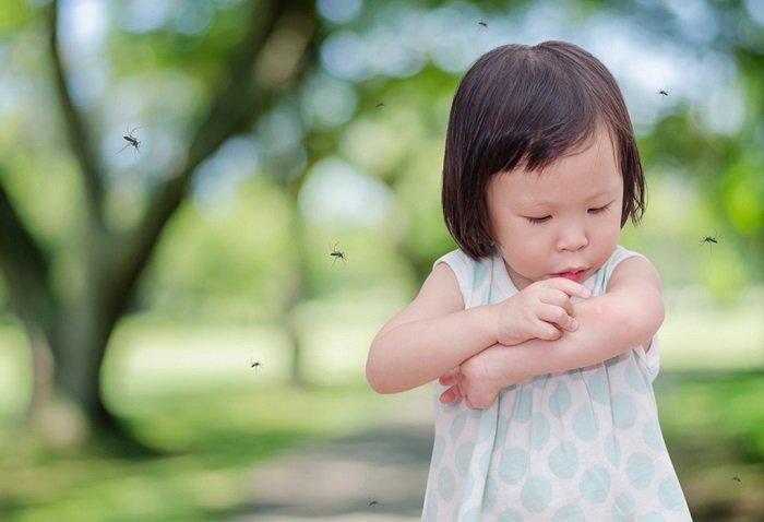 bé bị côn trùng cắn sưng tấy